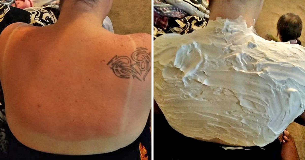 Woman claims shaving cream healed her sunburn in just 30 minutes