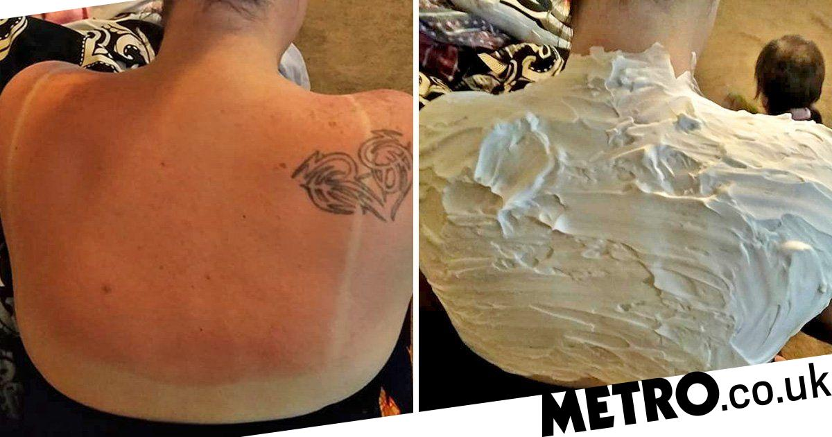 Does shaving cream heal sunburn? Woman claims it did in just 30 minutes |  Metro News