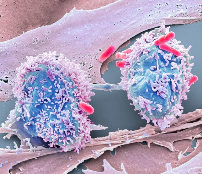 Dividing cancer cell. Coloured scanning electron micrograph (SEM) of a colorectal cancer cell undergoing mitosis (nuclear division) and splitting into two daughter cells (left and right). Here, it is in late telophase, the final stage before cell division (cytokinesis) and the two daughter cells are still connect by a cytoplasmic bridge (horizontal, centre). Bacteria (rod-shaped) can also be seen on the cells. Magnification: x2000 when printed at 10 centimetres wide.