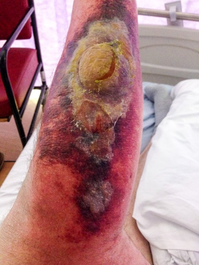MERCURY PRESS. 14/06/18. Colchester, UK. Pictured: A close up of the infection on Shawn Summerfields leg. A grandad who thought he had athletes foot was hospitalised and left with a foot-long patch of infection and oozing blisters after being bitten by a false widow spider. Shawn Summerfield was put on oxygen when his breathing became laboured and was given doses of strong antibiotics during his week-long stay in a bid to blast the infection. The 55-year-old has been so traumatised by what he went through that he now undergoes daily 30-minute anti-spider' rituals to avoid getting bitten again. SEE MERCURY COPY