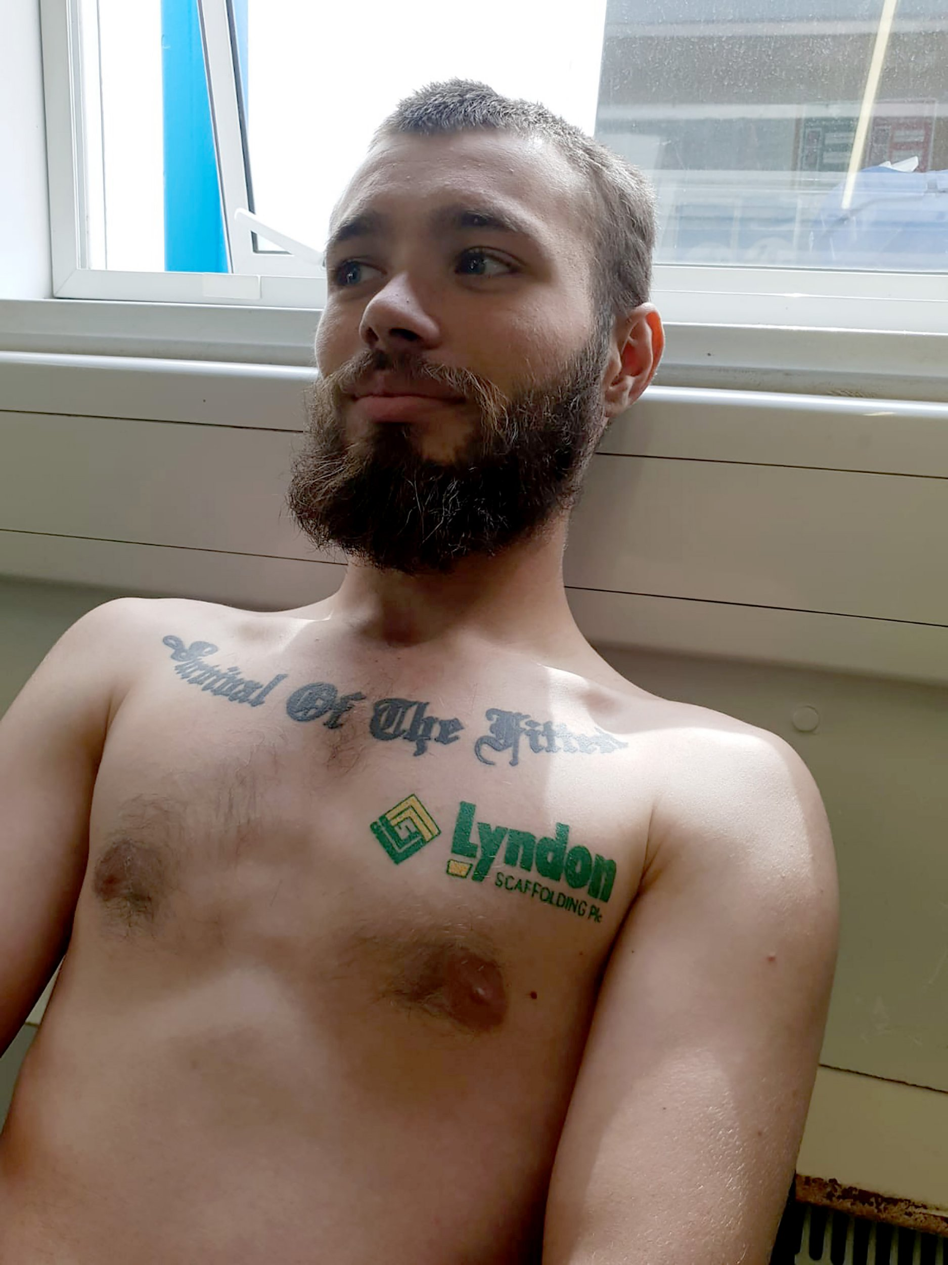 PIC BY FORTITUDE PRESS (PICTURED: SCAFFOLDER STEVEN PARKIN, 24 SHOWS OFF HIS LYNDON SCAFFOLDING TATTOO AFTER BEING DARED TO GET IT DONE BY WORK COLLEAGUES.) A scaffolder got a tattoo of his employer???s company logo, after work colleagues dared him to get the design and offered to pay for the bizarre inking. Steven Parkin, who has been working for Lyndon Scaffolding PLC for three years, got the tattoo last month after telling friends he would get anything they wanted as long as they paid for it. Even though the 24-year-old said he ???wasn???t that bothered??? about the chosen design, he says he now regrets having the tattoo done and admits he might get it covered up when he ???gets fired??? from his job. SEE FORTITUDE COPY