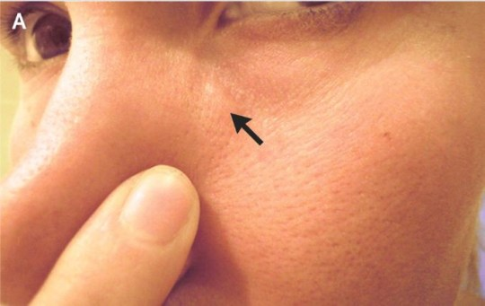 Bumps on woman's face turned out to be a parasitic worm