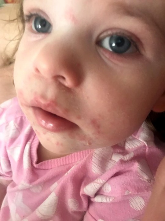 Hand, foot and mouth leaves girl, 2, looking like 'giant