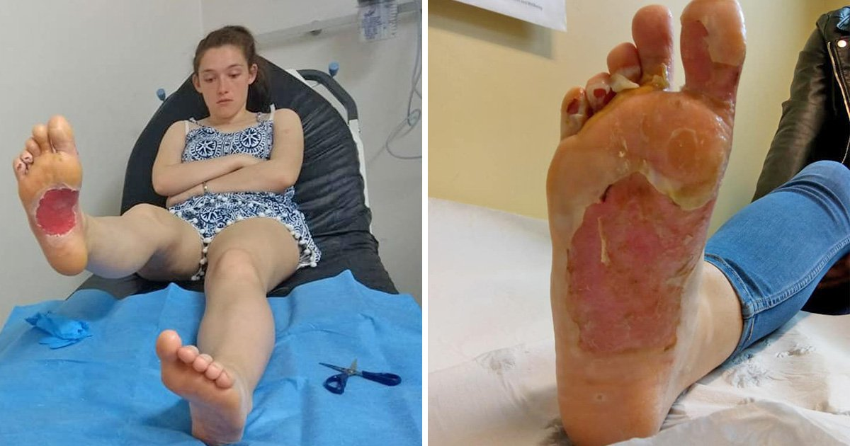 Girl, 17, left with shocking burns after walking on sand made searingly hot by barbecue