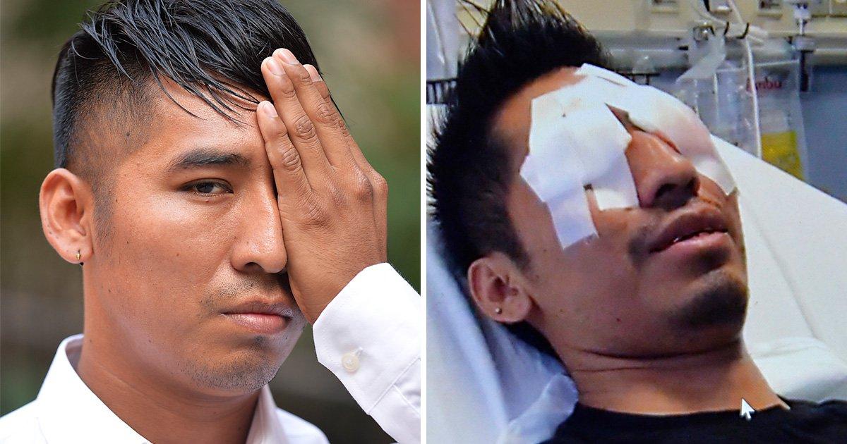 Exploding Corona bottle blinds barman in one eye