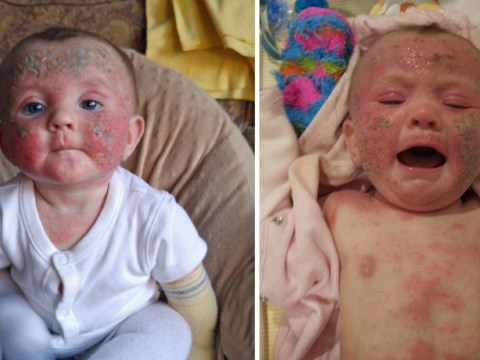 Baby lives in agony as skin burns, peels off and scabs over daily