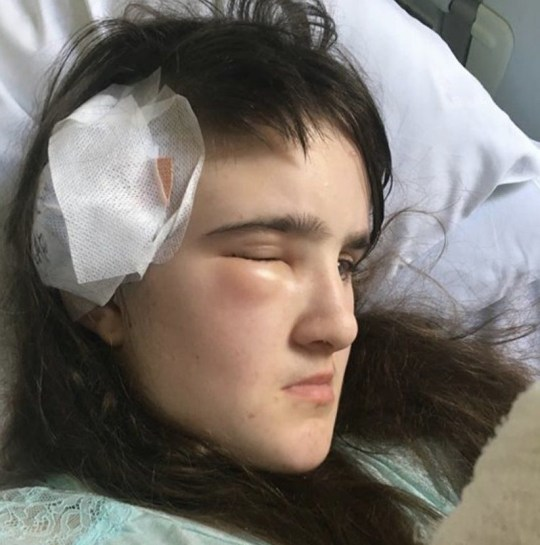 Maisie after surgery (Collect/PA Real Life)