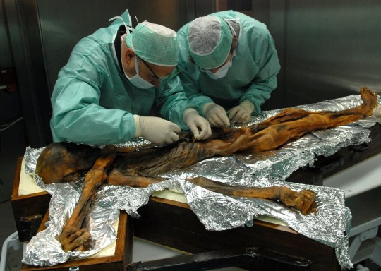 Re-sent with the correct embargo - many apologies. ***EMBARGOED UNTIL 16.00 BST, THURS JULY 12TH (11.00 ET)*** A stomach content sampling campaign in November 2010 in Bolzano, Italy where scientists took samples of Otzi's last meals. See National News story NNICEMAN; The world's first sheepskin coat was worn by Otzi the Iceman 5,300 years ago, according to new research. Scientists have analysed the famous mummy's clothes for the first time and found they were made from a variety of five different animals. These included brown bear for his hat, goat for his leather and sheep - for his coat. It means Otzi, found frozen in a glacier in the Alps a quarter of a century ago, was donning the garment more than 5,000 years before football commentator John Motson made it famous.