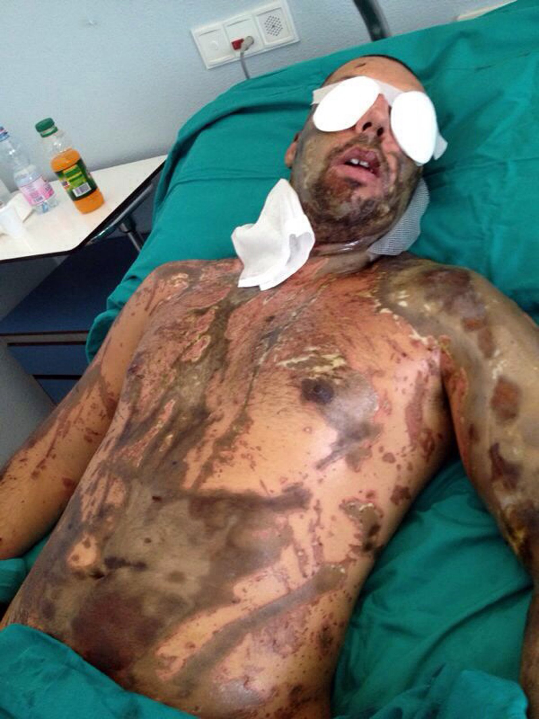 Pic from Caters News - (Pictured:William Pezzulo, 33 in horrific condition in hospital after the attack.) - An acid attack survivor has released horrific images of him just days after he claims his ex-girlfriend threw a BUCKET of acid in his face. William Pezzulo, 33, became the victim of an acid attack when his ex-girlfriend, Elena Perotti, and her accomplice, Dario Bertelli, threw a bucket of acid over him. Despite over three months in hospital and 33 surgeries, the damage the acid caused left William blind in his left eye, with blurred vision in his right eye, loss of scalp and lost the earbuds in his ears. Now, for the first time and with acid attacks on the rise in the UK, William is releasing the photographs of his attack on the evening of September 19, 2012, to raise awareness of the impact the attack has caused on his life. SEE CATERS COPY.