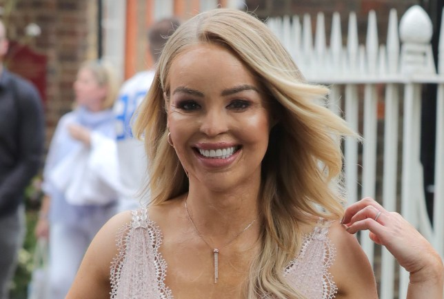 What happened to Katie Piper? What the Strictly star said about acid