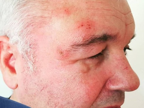 Eamonn Holmes insists he 'hasn't been in a scrap' and reveals nasty shingles rash on his face