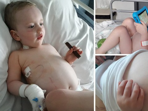 Toddler's tummy pain dismissed as 'trapped wind' was actually giant tumour