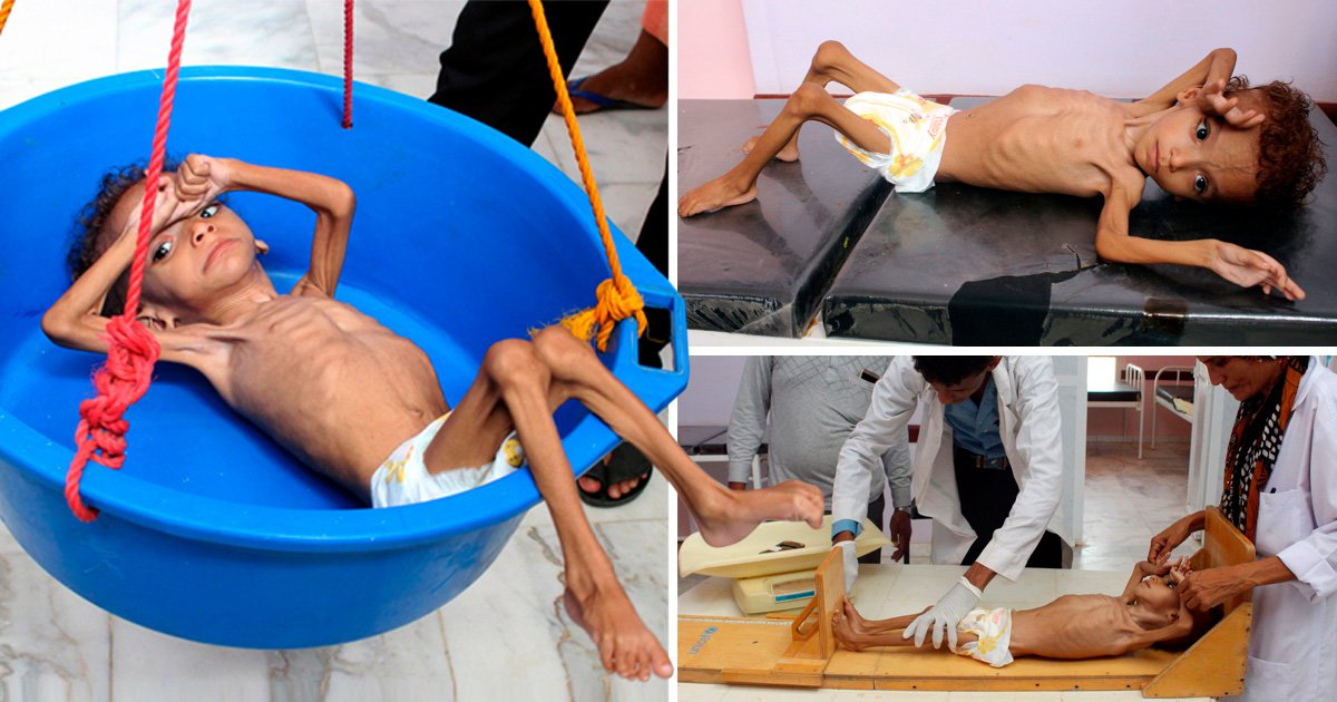 Shocking pictures of starving child show brutal effects of Yemeni war