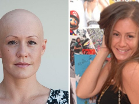 Woman tells how ectopic pregnancy made her go completely bald in less than a week