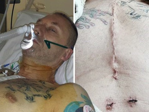 Terminally ill cancer patient shows effects of smoking 300,000 cigarettes in a lifetime