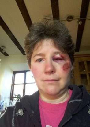 A nurse is lucky to be alive after being trampled by a cow as she walked her dogs in the countryside. Mum Corrine Mathias, 52, spent six months battling back to health after the family farmyard horror. She set off on the dog walk when she noticed a cow had gone into labour on the family farm. But when she went over to check, she was butted, barged and kicked by another cow trying to protect her own calf. Pictured here is Corrine Mathias WALES NEWS SERVICE