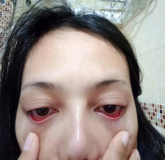 3c01e1e898b Backstreet beautician used super glue to apply woman's fake ...