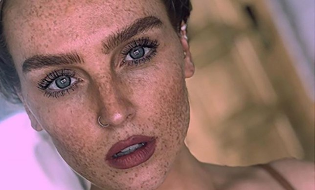 Perrie Edwards on her freckles