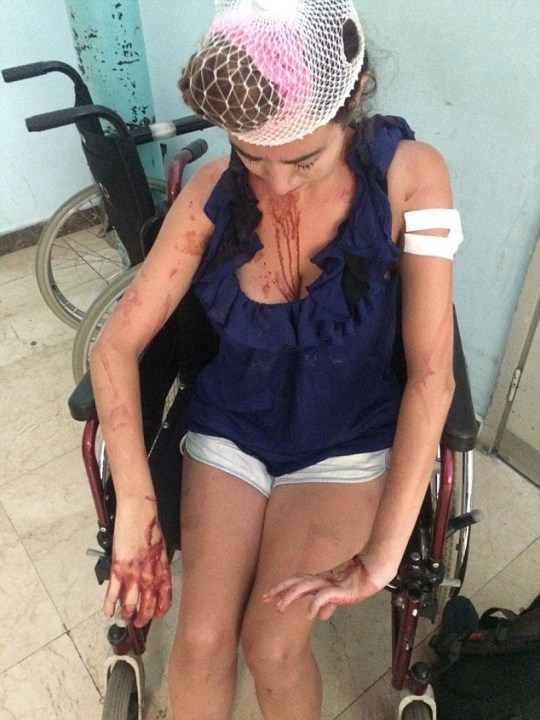 Laura Denmar (pictured) was attacked in the Croatian resort of Split when she refused to pay more money for a hostel: Laura Denmar awaits treatment after the attack