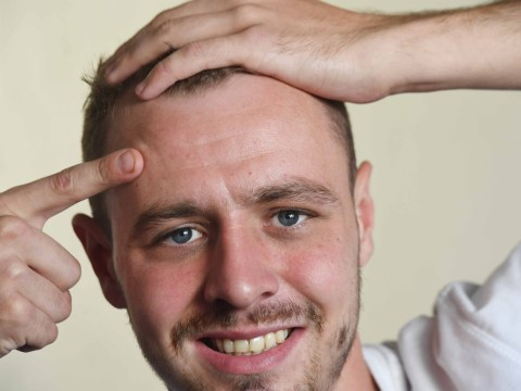 Dad of one offers advertising space on his forehead