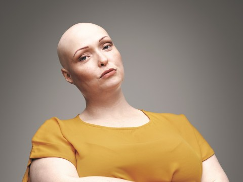 I was bullied for my alopecia but now I embrace not having any hair