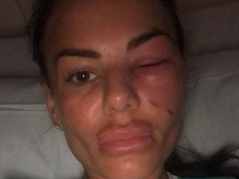 Geordie Shore's Chantelle Connelly rushed to hospital after being bitten by spider in Newcastle