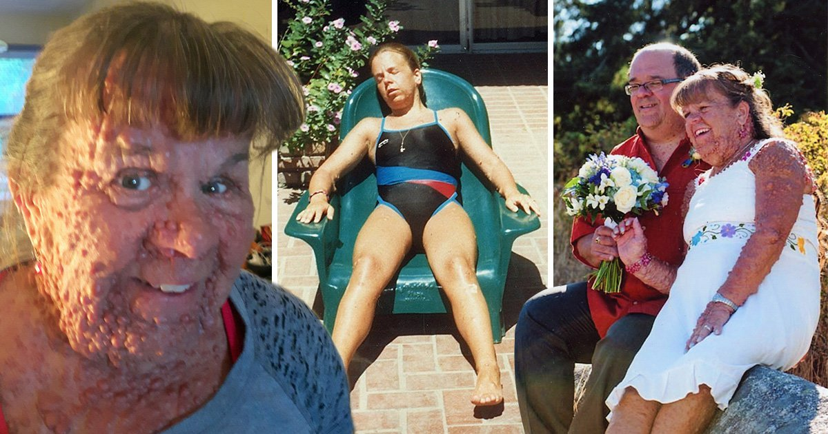 A woman covered in thousands of tumours is embracing her body