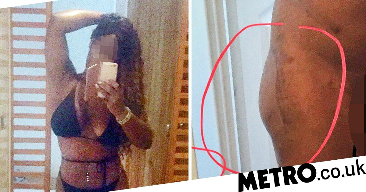 Beautician who travelled to Turkey for a bum lift claims it has