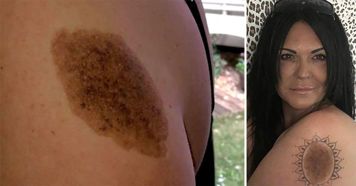 Woman embraces birthmark bullies said looked like 'poo' with a tattoo