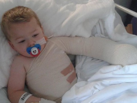 Three-year-old's 'skin came off' after he fell into hot bath