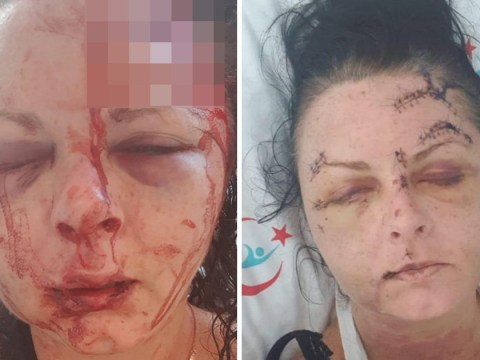 Woman's skull fractured by man after she turned down sex on holiday
