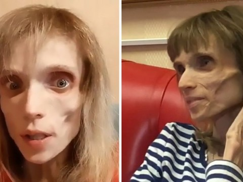 Anorexic woman so thin doctor says she could 'play a living corpse in horror movie'
