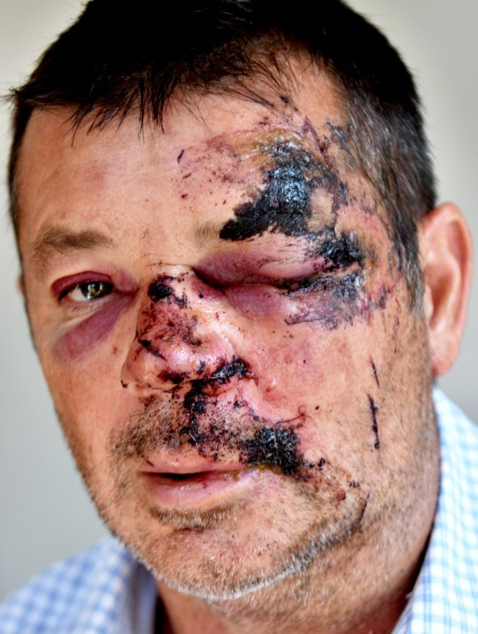 Kevin Farrell, from Osbaldwick, one of a group of cyclists injured after hitting a pothole. See ROSS PARRY story RPYPOTHOLE. Five cyclists suffered serious injuries after hitting a pothole - and now fear that ?someone could be killed? if city roads aren?t improved.The group, cycling as part of a club, was riding along Wigginton Road in York when the front rider hit the pothole. His front tyre exploded, but he escaped without major injury. However, there was a concertina effect and his fellow cyclists ploughed into him. Between them, the other riders suffered a broken clavicle, cracked vertebrae and bleeding on the kidneys, as well as cuts and abrasions.