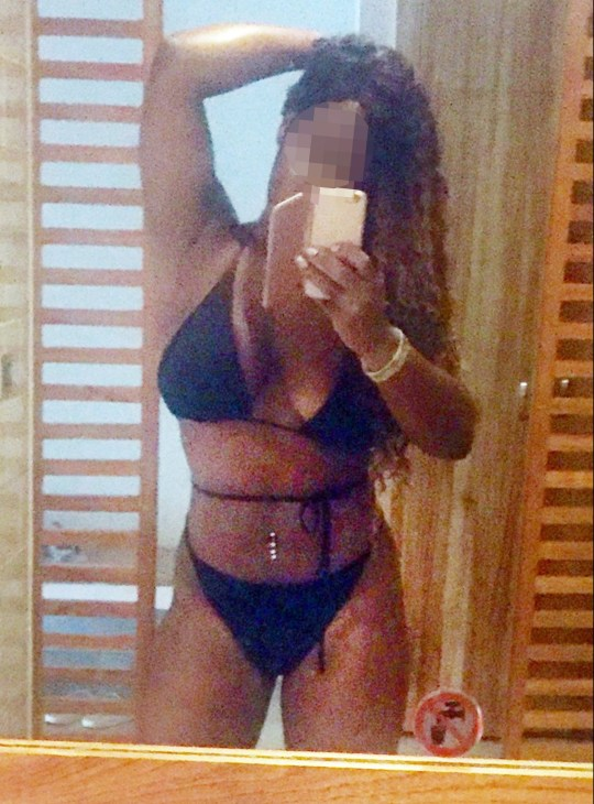 Birmingham beautician Michelle Thomas travelled to Turkey in bid to look like Beyonc?? - Michelle Thomas says her Brazilian bum lift went horribly wrong Birmingham beautician Michelle Thomas travelled to Turkey in search of the perfect, booty-ful beach body. But cosmetic surgery to craft a dream Beyonc??-style derriere has, Michelle claims, left her mis-shapen, in pain and thousands of pounds out of pocket. It has also led to three UK hospital visits. But the clinic involved, Mediface Surgical Centre in the Mediterranean coastal city Antalya, strenuously denies that Michelle???s problems and hospital treatments are a result of their work. They have done nothing wrong, a spokeswoman told the Sunday Mercury. To date, Michelle says she has spent ??3,800 and faces a third operation to rectify the damage she claims was caused. Last night, the 31-year-old said: ???They have ruined me.???
