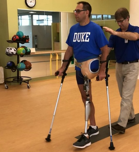 Mark Nagel learns to walk with his false leg. See SWNS story NYINGROWN; A dad-of-two lost his leg and was left fighting for his life after catching a deadly infection ?from an ingrown hair?. Mark Nagel, 53, gained 45lbs in one leg and went temporarily blind within two weeks of contracting lethal necrotizing fasciitis in his left thigh. The bacteria is believed to have entered his system through an ingrown hair and multiplied in an ?empty space? created when he slipped and pulled a muscle. It left Mark, from Saint Paul, Minnesota, US, suffering from a dull aching pain which intensified as the virus ate through his flesh.