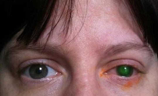 Emma's affected eye (Collect/PA Real Life)