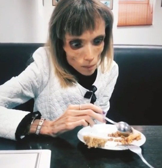 """Pic shows: Kristina Karyagina, the anorexic woman eating A young anorexic woman who weighs just 2.7 stone has managed to eat something for the first time this year during the second day of her groundbreaking treatment. Kristina Karyagina, from the city of Barnaul in south-central Russia's Altai Krai region, reportedly weighs only 17 kilogrammes (2.7 stone). The 26-year-old was diagnosed with anorexia, but has no specialist care in her hometown. Fortunately, reality TV star and blogger Maria Kokhno used her 520,000 Instagram fan base to raise awareness and help Karyagina. Kokhno, who also suffered with anorexia, said: """"I know what it is like when someone puts a meal in front of you and you cannot eat it. Even when you are aware that you are dying, you still cannot eat."""" The social media star found a doctor willing to treat Karyagina for free and helped raise 110,000 RUB (1,220 GBP) for Kristina and her mum to fly to Nizhny Novgorod in western Russia. Kokhno visited Karyagina on her second day of treatment and filmed the frail woman, who is hopefully now equipped to deal with her crippling illness. The clip shows the anorexic woman managing to eat some food. In another post, Kokhno is seen taking a leisurely stroll with her new friend, saying: """"Today, Kristina ate for the first time since last year. She now knows that anything is possible, it is very important."""" Doctor Yan Goland, who agreed to treat Kristina for free, has not commented on Karyagina???s treatment yet. The kind doctor treated Kokhno when she was anorexic."""