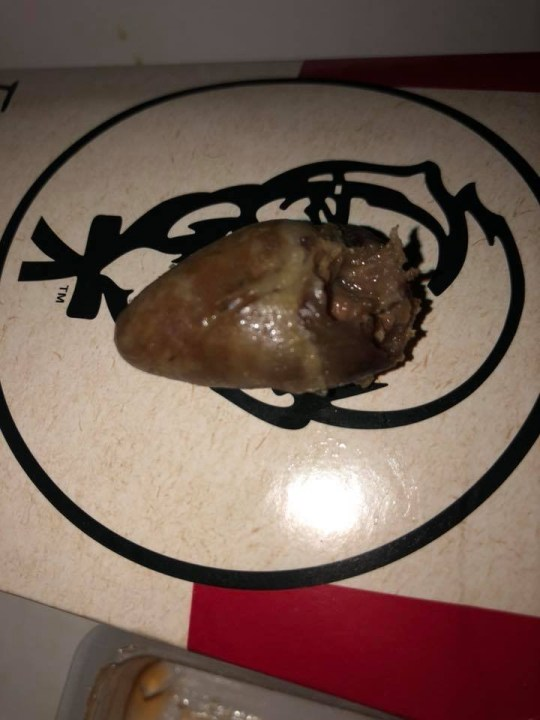 METRO GRAB - taken from Facebook post to KFC Man finds 'black and slimy' chicken heart inside his box of kfc Facebook