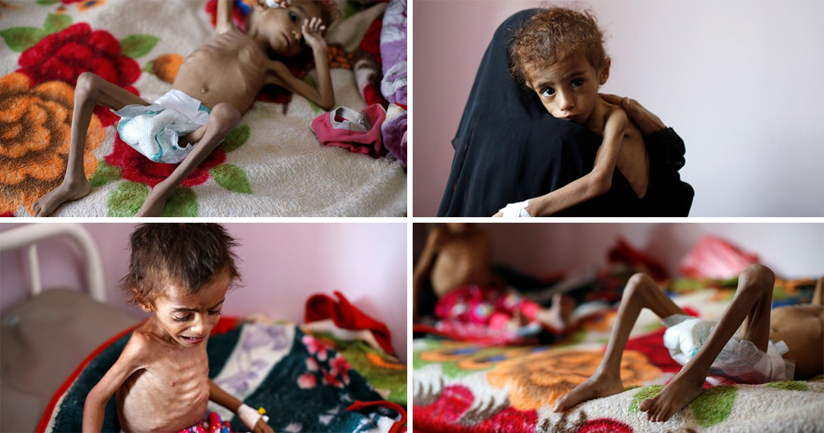 Shocking images of starving children show reality of the war in Yemen