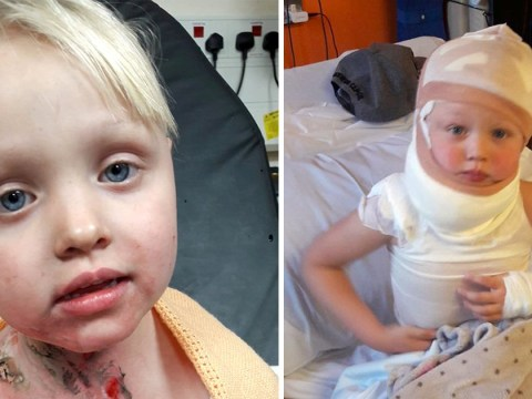 Girl, 4, turned into human fireball after being hit in the neck by firework