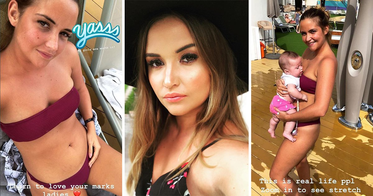 Jacqueline Jossa owns her stretchmarks like a queen: 'This is real life'