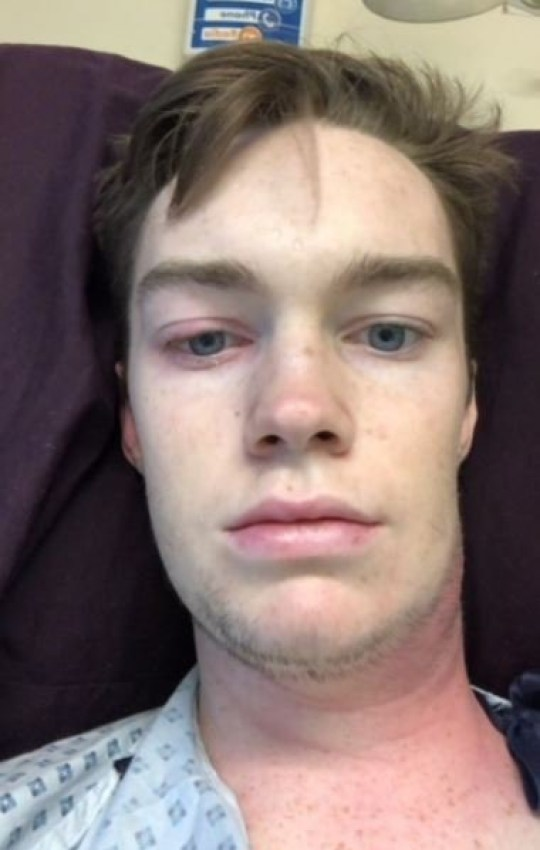 Geraint Mullins, 17, from Newport, was diagnosed with sepsis after popping a spot on his neck