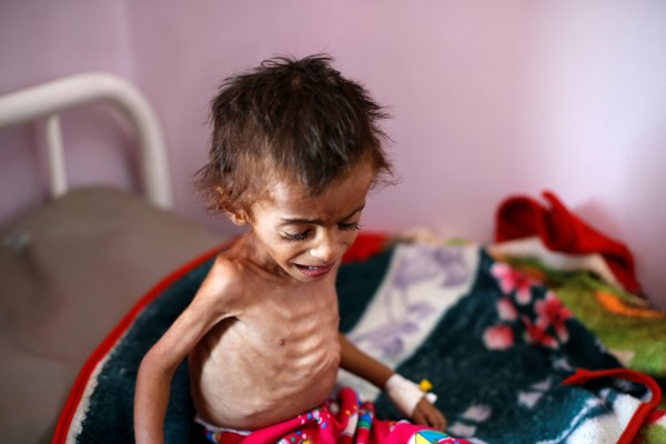 A malnourished boy cries as he sits on a bed in a malnutrition treatment centre at the al-Sabeen hospital in Sanaa, Yemen October 6, 2018. REUTERS/Khaled Abdullah