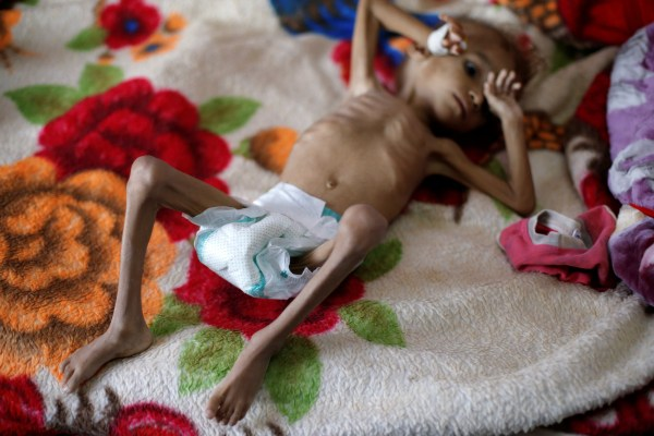A malnourished boy lies on a bed in a malnutrition treatment centre at the al-Sabeen hospital in Sanaa, Yemen October 6, 2018. REUTERS/Khaled Abdullah