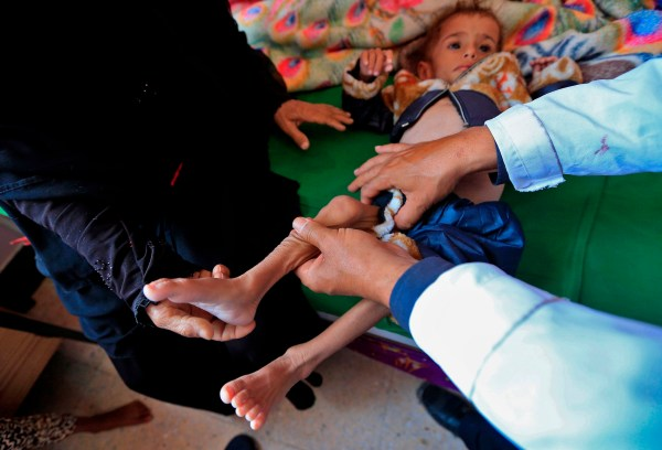 A Yemeni physician holds the leg of a boy suffering from malnutrition at a treatment centre in a hospital in the capital Sanaa on October 6, 2018. (Photo by AFP)/AFP/Getty Images