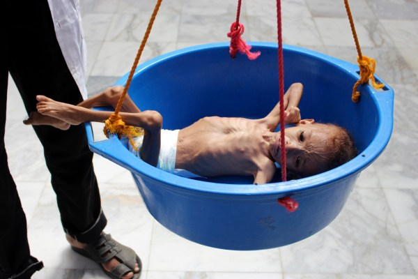TOPSHOT - A Yemeni child suffering from malnutrition is weighed at a hospital in the district of Aslam in the northwestern Hajjah province on September 28, 2018. (Photo by ESSA AHMED / AFP) (Photo credit should read ESSA AHMED/AFP/Getty Images)