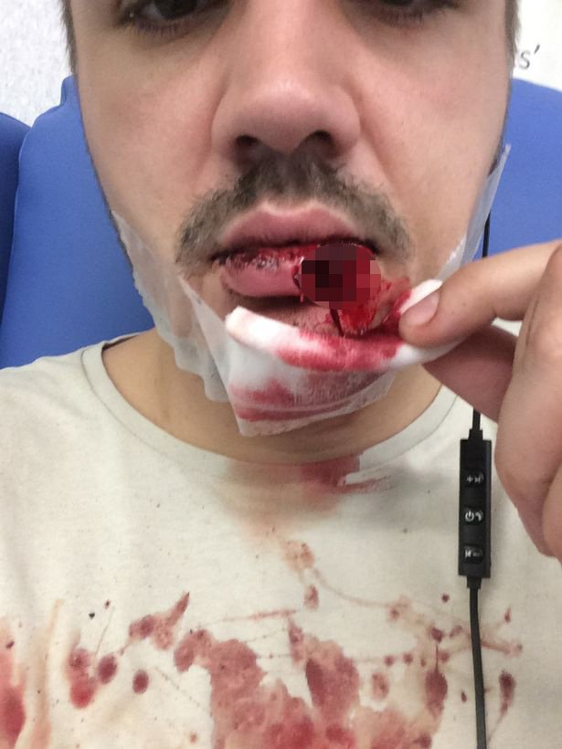 A man was left needing surgery to rebuild his lip after a dog he brought off Facebook turned on him and tore it off.Blake Walker bought the American Bulldog a month ago but on Friday had to rush to the Queen's Medical Centre and spent the weekend on a ward.caption: Blake Walker shows his injuries