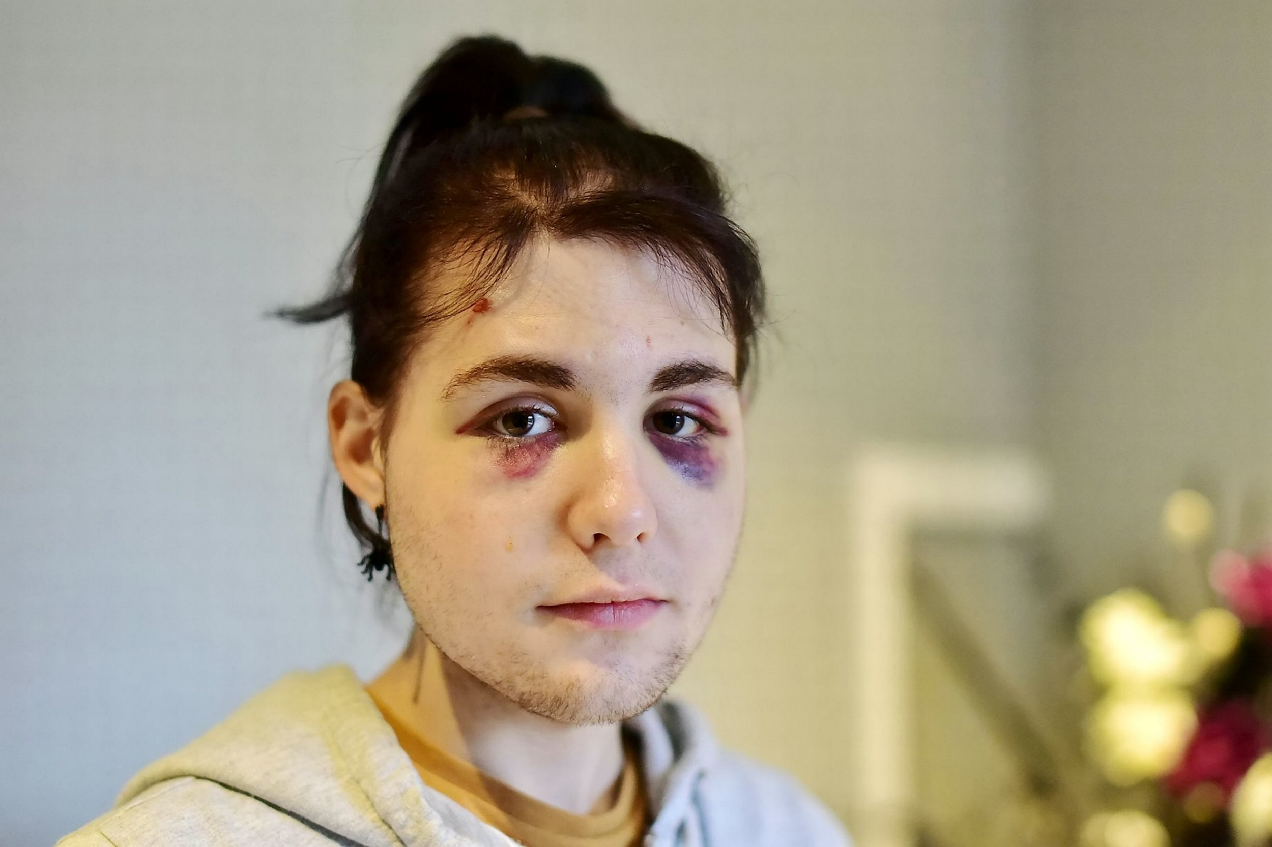 Kydis Zellinger, 18, was the victim of a homophobic attack by a stranger on the First Bus number 76 service near Parsons Street. Mr Zellinger received two black eyes.See story SWBRbeating. A teenager has spoken of the terrifying moment he was savagely beaten by a complete stranger in a vile homophobic attack. Kydis Zellinger said he feared for his life as a screaming stranger rained blows down on him in an unprovoked assault which the police are treating as a hate crime. The 18-year-old as two black eyes and is now too terrified to leave the house alone following the assault ? which he says fellow bus passengers did nothing to stop.Kydis described how the ten other passengers on the bus didn't intervene when the man, holding a can of larger, followed him upstairs and started abusing him before punching him repeatedly in the face.