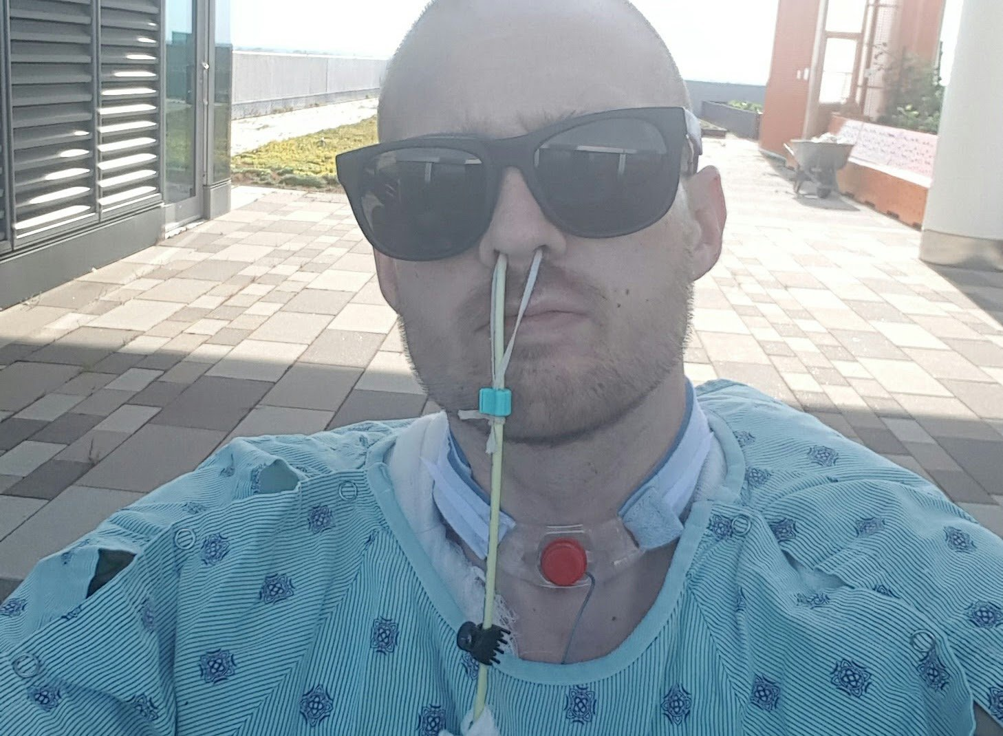 Joe pictured at the hospital during his surgery. MEET the man who had BOTH LEGS and his PENIS amputated after suffering a horrific crash caused by drink-driving that resulted in his truck landing on top of him. In April 2016, former rhino liner installer, Joseph Green (34), from Indiana, USA, had decided to go for dinner and a couple of beers with his mum and brother after he finished a long shift at work. He then was heading home but decided to stop off at a bar on the way. After a few drinks, he drove home, drunk and exhausted from his 20-hour-day at 2am the next morning. Ahead of him was a sharp turn in the road, as Joe began drifting off at the wheel, his foot slammed on the gas pedal and he lost control of his truck and couldn???t make the curved turn. He then fishtailed into a boulder on the road in front of him which sent his truck flipping out of control at 80 miles per hour. Joe was thrown out of the truck and landed on the ground, breaking his left shoulder, sternum, ribs, tailbone and had a collapsed lung, as well as a displaced hip and left knee. The moment he landed on the ground, his truck landed on top of him and an inferno ensued; resulting in third and fourth degree burns on half of his body from the waist down. Luckily a man who lived nearby appeared and pulled him out of the wreckage and he was taken to a local hospital. He stayed in the hospital for four months and underwent 14 surgeries including; both of his legs and his penis had to be amputated due to his burns, he had skin grafts and prosthetic legs were fitted. It took him two years to learn how to walk on his prosthetic legs. He is now an advocate for campaigns that encourage drivers not to drink-drive and to be safe on the roads. Joseph Green / MDWfeatures