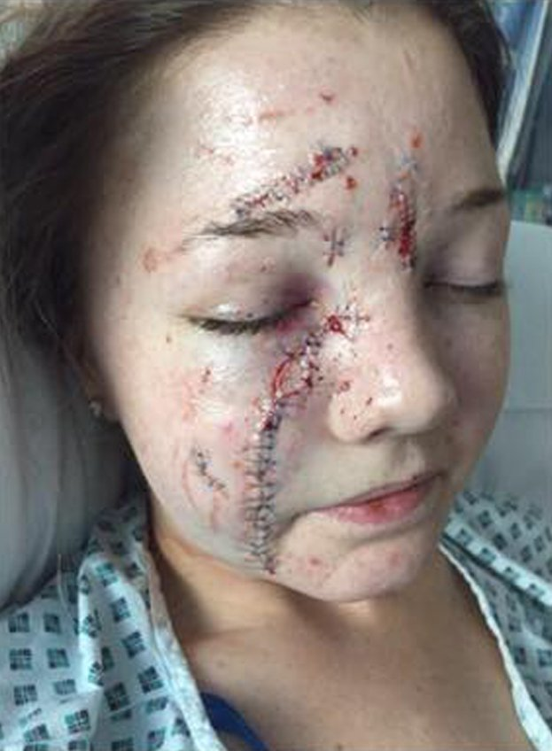 A beautician glassed another woman on a night out - and now she can't face looking at her own reflection in the mirror. Demi Marshall, 26, was jailed for six years for leaving pretty Abbie Watson with scars down the length of her face in the brutal glassing. Abbie, 22, needed stitches from her chin to above her eye - and seven months later the scarring has not healed. Pictured here is Abbie Watson with her injuries. ? WALES NEWS SERVICE